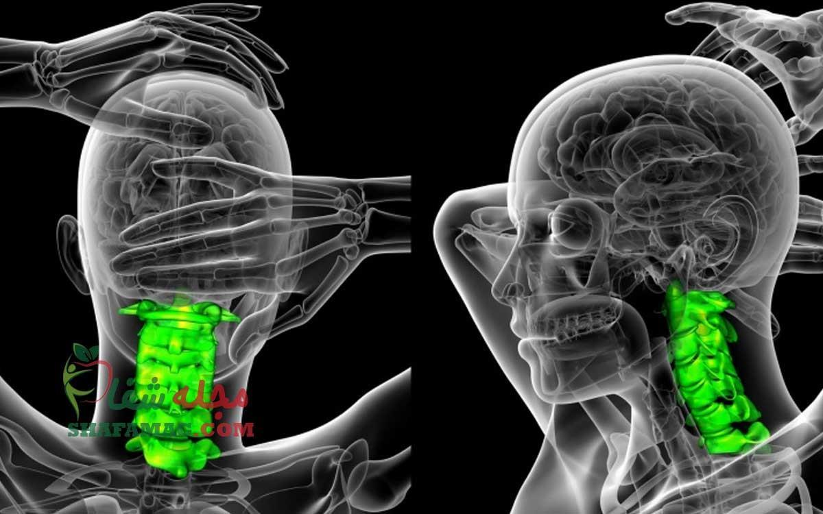 آرتروز گردن چیست