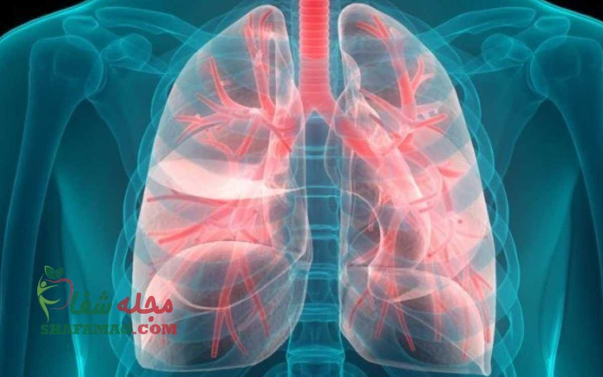 مهمترین علائم سرطان ریه