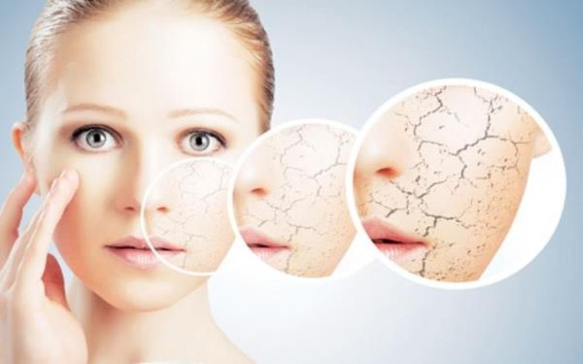 درمان خشکی پوست کل بدن