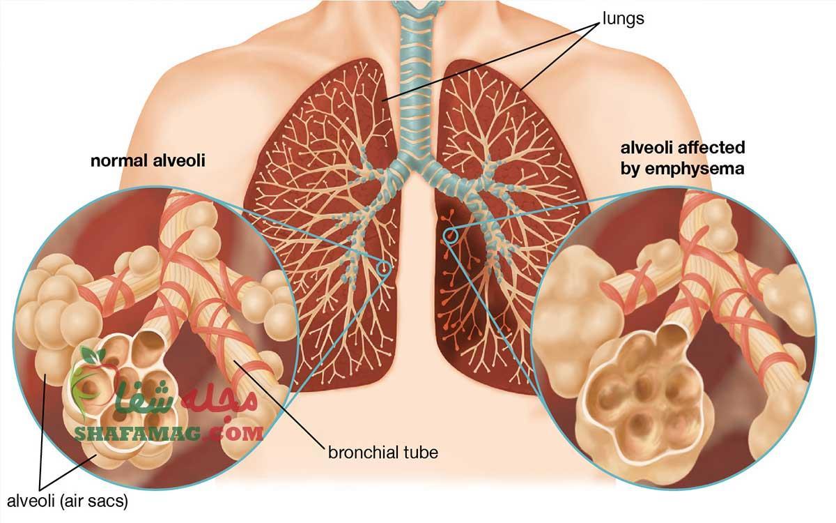 آمفیزم: علائم، علت، عوارض و درمان