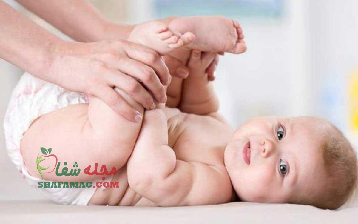 ادرار سوختگی نوزاد چیست و چگونه درمان می شود.