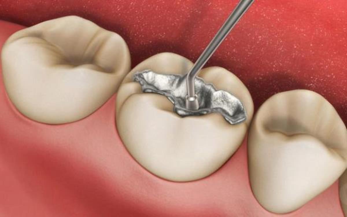 نکات بعد از پرکردن دندان