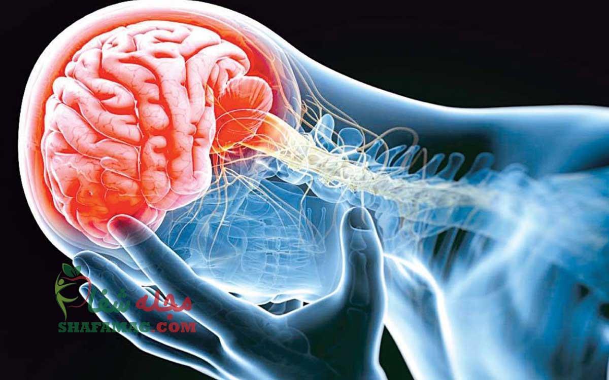 علائم سکته مغزی چیست