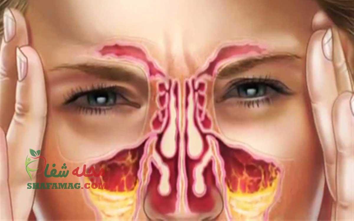 علائم سینوزیت مزمن