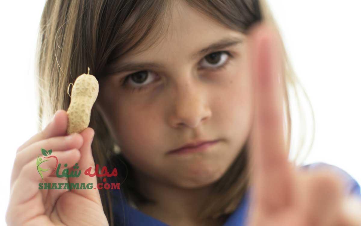 علت و تشخیص حساسیت و آلرژی غذایی در کودکان