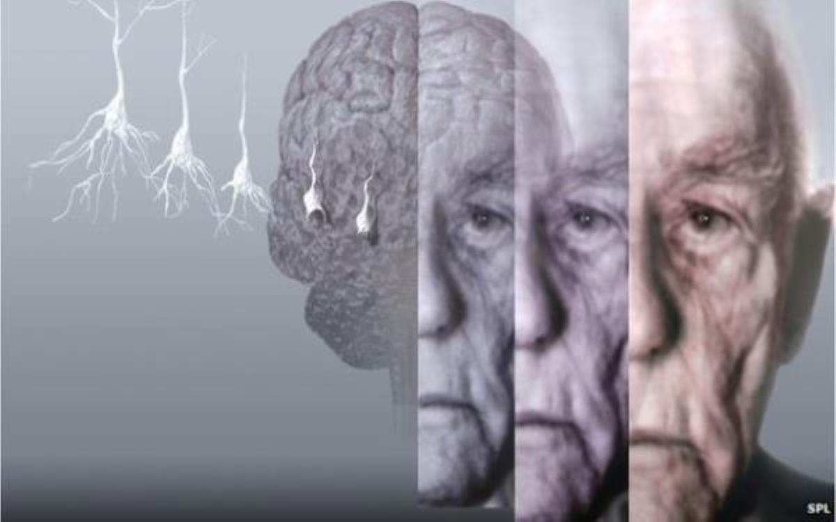 چه مواردی باعث پیر شدن مغز می شود