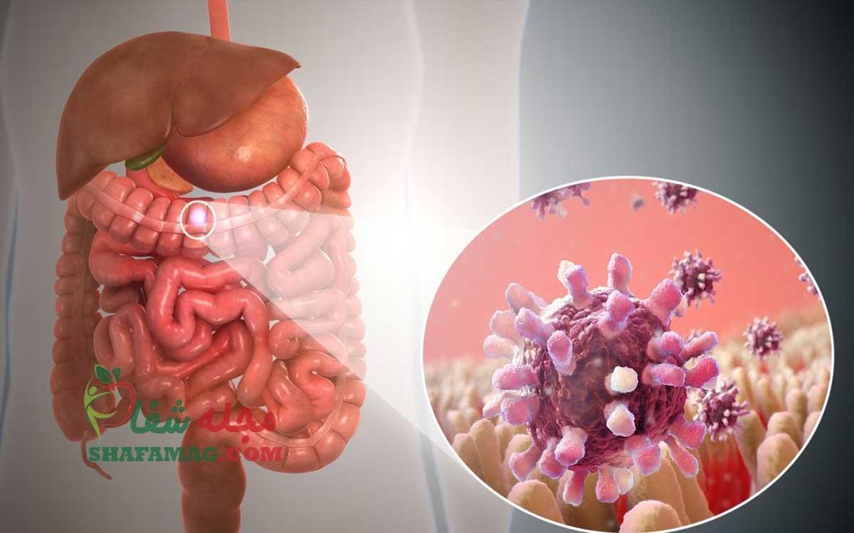 درمان گاستروانتریت چیست