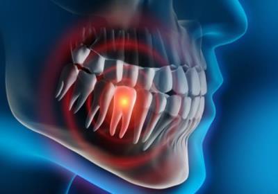 آیا عفونت دندان باعث درد معده میشود