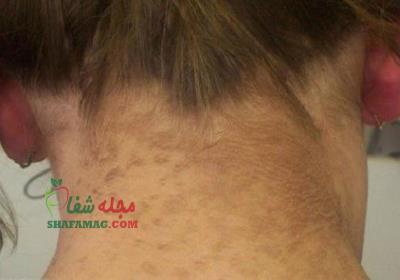 درمان خانگی لکه های قهوه ای روی گردن