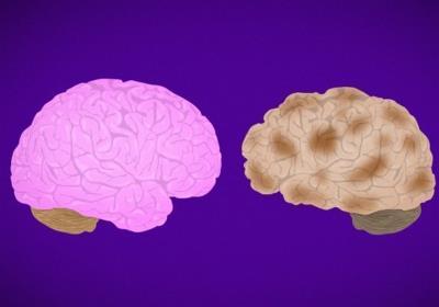 پیوند مغز