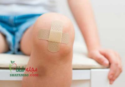 بهترین راه پانسمان زخم کودکان چیست