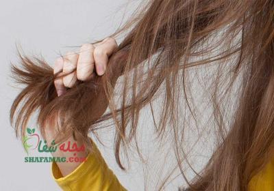 درمان نازک شدن موی سر زنان
