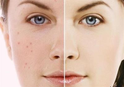 روش هایی برای سفت شدن پوست صورت