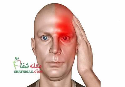 علائم سردرد میگرنی چیست