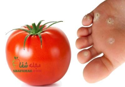 درمان میخچه پا با گوجه فرنگی