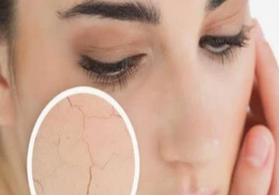 راههای جلوگیری از خشکی پوست صورت