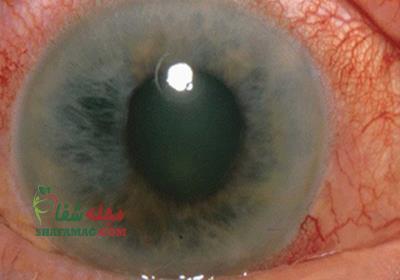 آب سیاه چشم: علائم، تشخیص و درمان