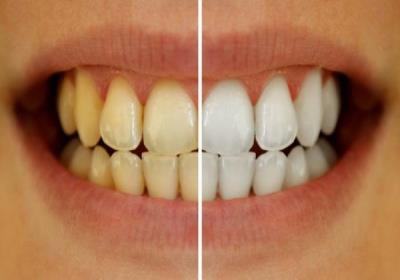 عادت های اشتباه در سلامت و زردی دندان